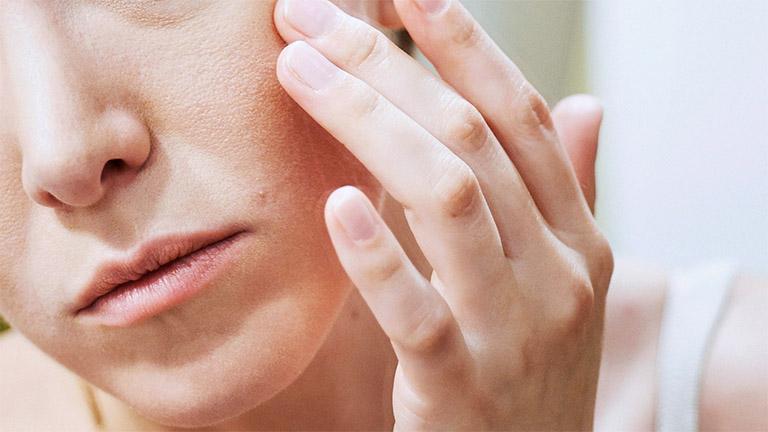 Hàm lượng chất cay trong cơ thể quá nhiều sẽ hút ẩm gây ra tình trạng khô da